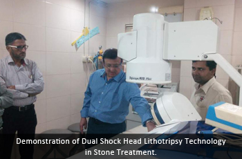 Demonstration of Dual Shock Head Lithotripsy Technology in Stone Treatment.